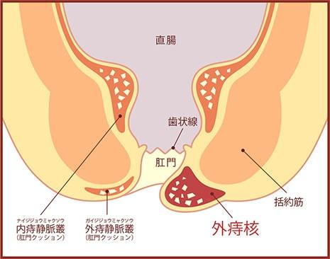 外痔核の図