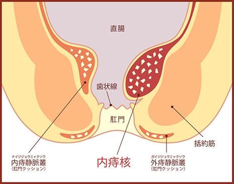 内痔核の図
