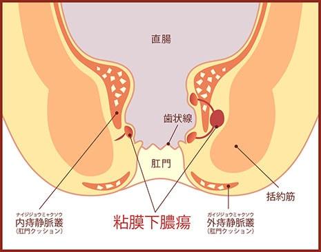 粘膜下膿瘍の図