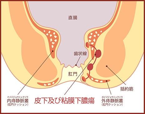 皮下及び粘膜下膿瘍の図